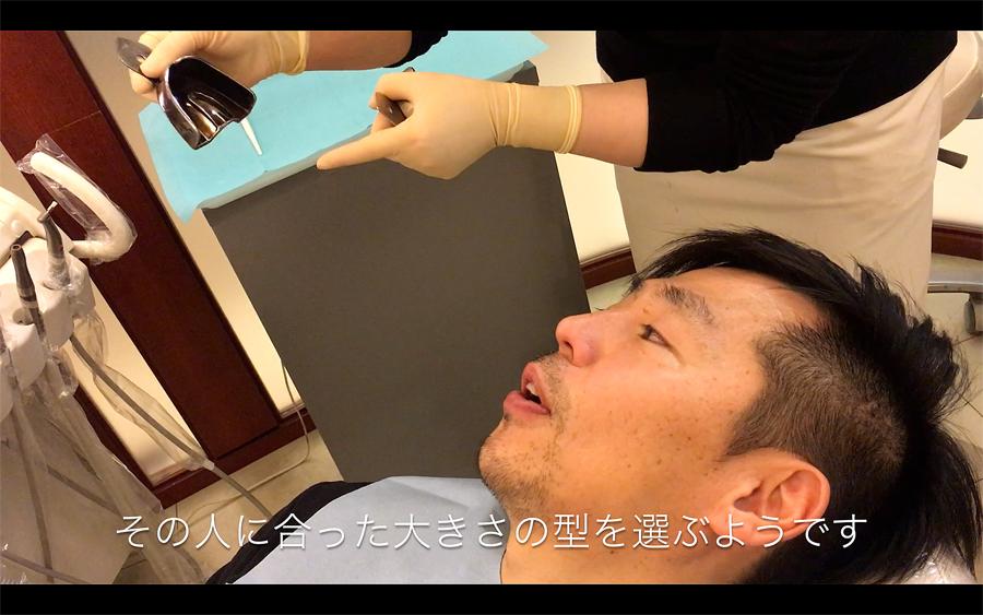 歯型とりの道具