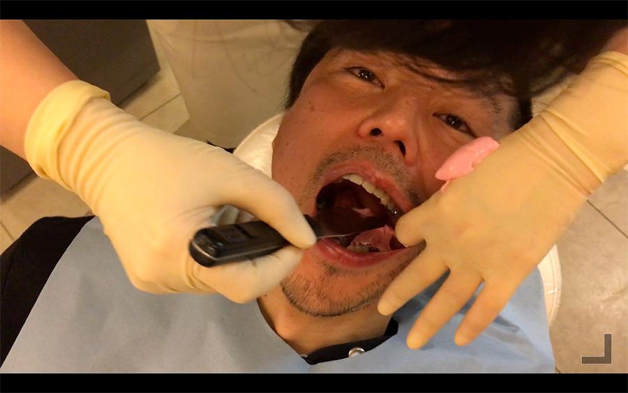 歯型取りのやり方2