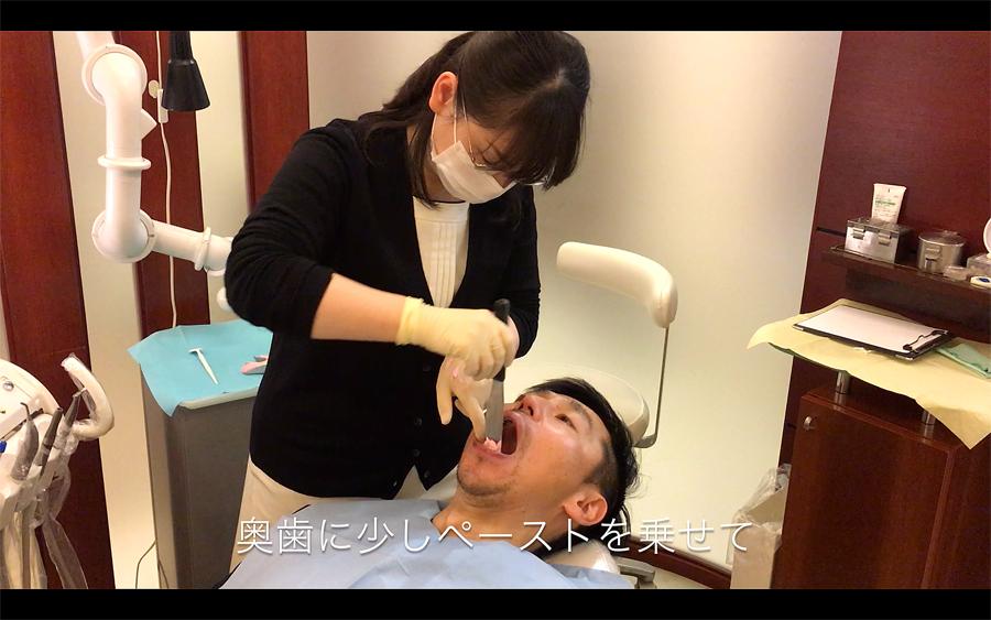 歯型取りのやり方1