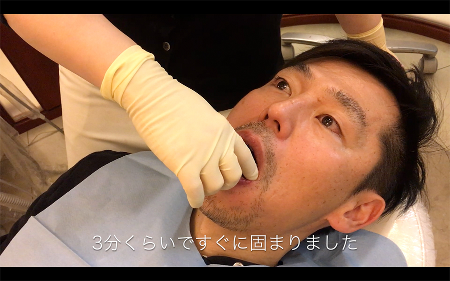 歯型取りにかかった時間