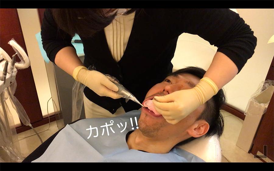 歯型の外し方