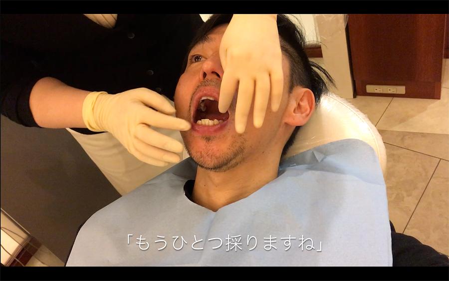 歯型取りの回数