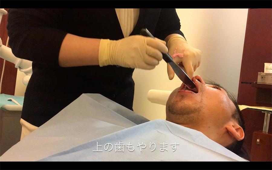 歯型取りは上下2回ずつ取ります