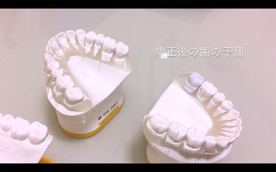 歯列矯正後の理想の歯の模型(セットアップ)
