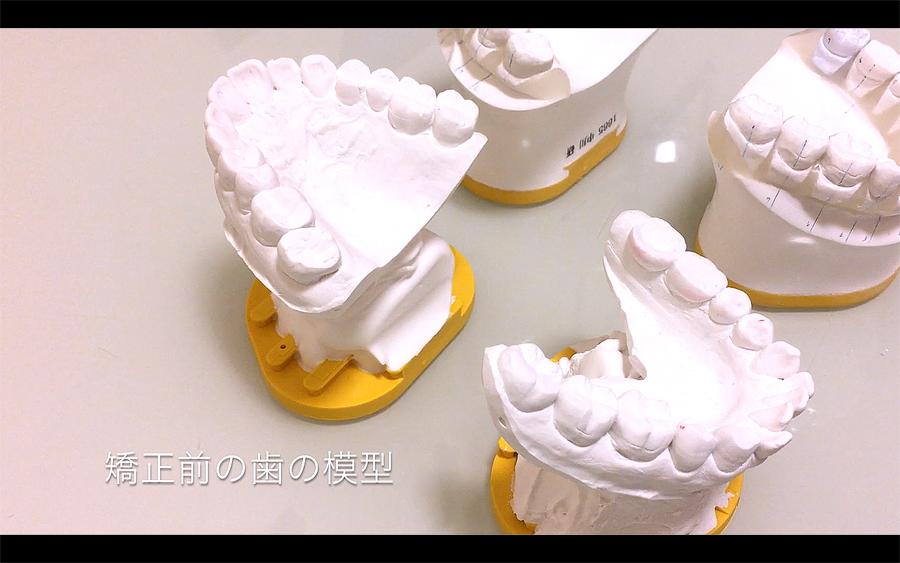 歯列矯正前の歯の模型