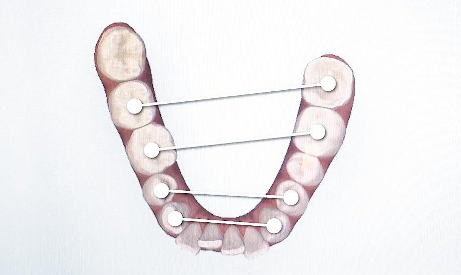 【歯列矯正の記録】失敗の原因③ 歯を片側だけ抜く