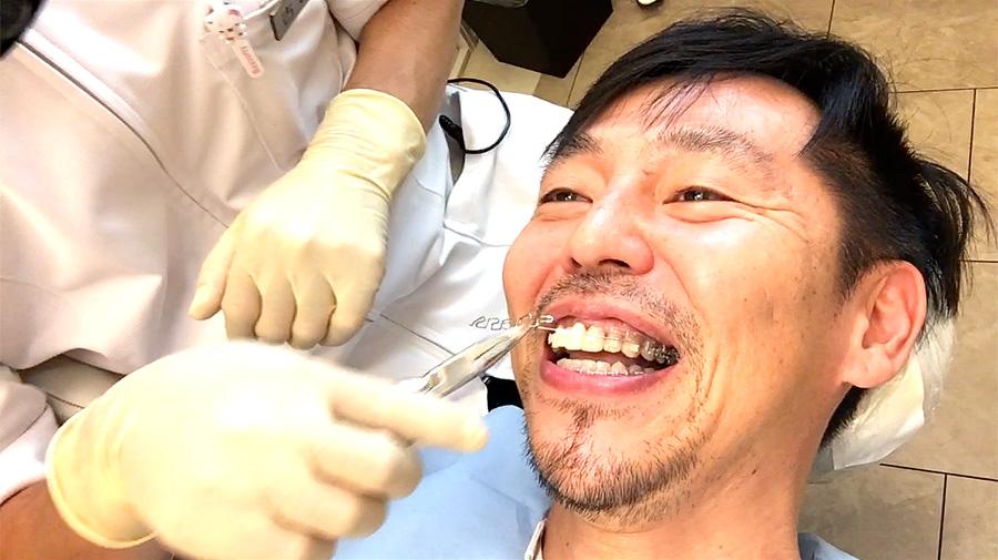 【歯列矯正】40代で始めました【失敗を恐れることの方がリスクです】