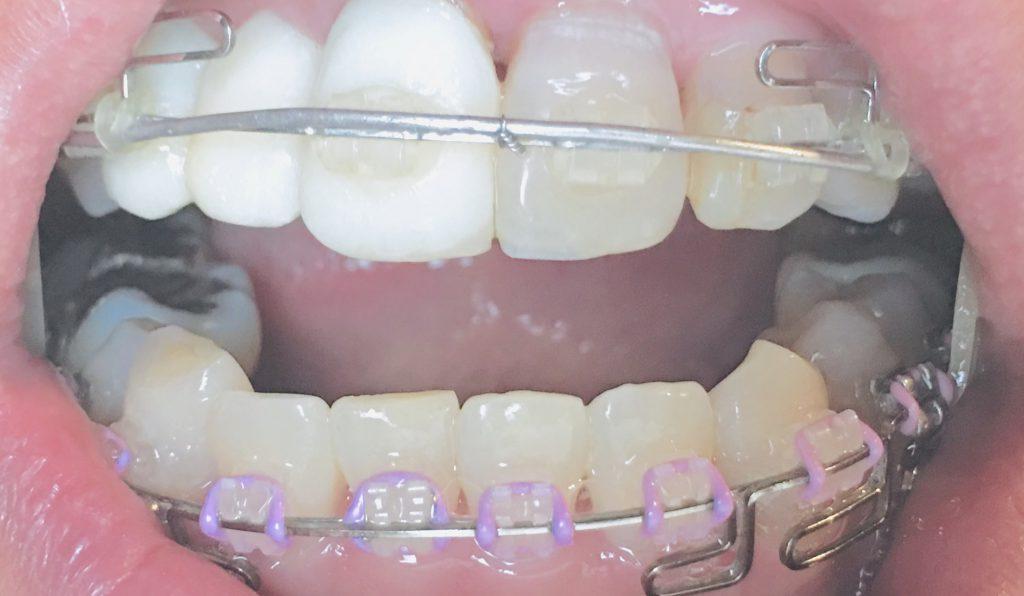 犬歯を削るの大丈夫?長く尖った犬歯を削った理由と結果・・歯列矯正経過日記