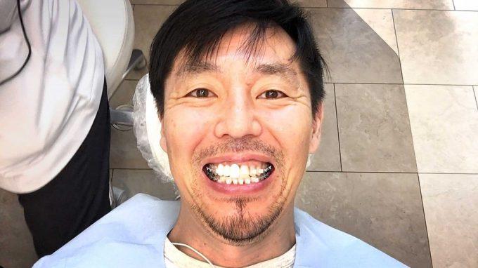 【歯列矯正】調整日って何するの?一部始終を実況レポート