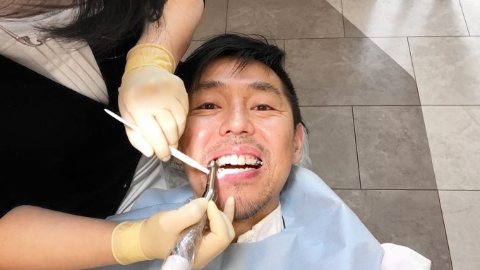 【噛み合わせ】前歯が当たらない…原因と改善方法【歯列矯正体験談】