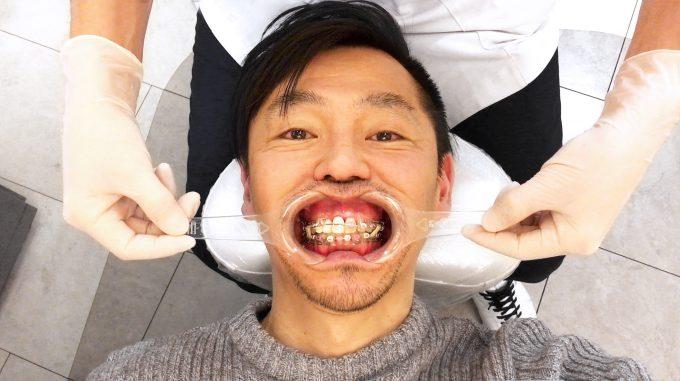 【非抜歯矯正ブログ】健康な歯を抜きたくなかった理由【体験談】