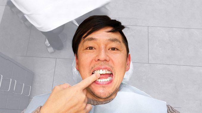 【虫歯】銀歯以外の白い被せ物でも保険治療ができる【条件あり】