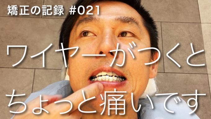 【歯列矯正】初めてワイヤーをつけた時の様子【種類・仕組み・痛い?】