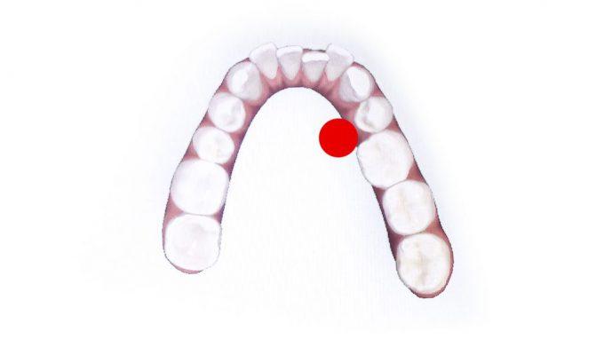 二重歯列|歯が内側に生えている歯並びの画像
