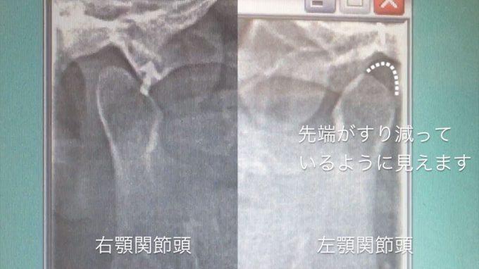 レントゲン検査の結果① 顎関節の変形