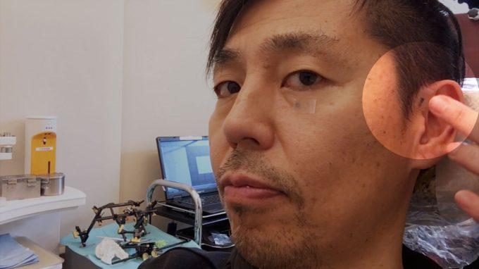 歯列矯正前のレントゲン検査の手順【顎関節の目印として鉛を貼り付ける】