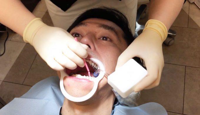 歯列矯正装置は接着剤でつけます