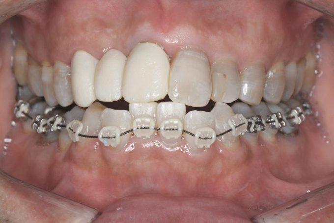 歯列矯正装置が歯についた感想