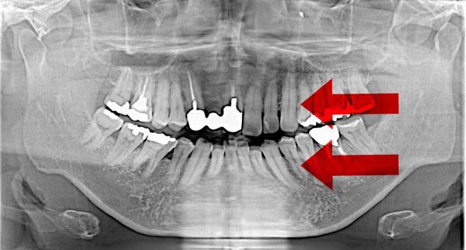 レントゲン検査の結果③ 歯の傾き