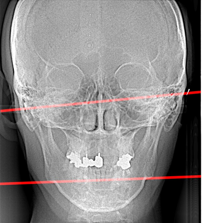 レントゲン検査の結果② 顔の歪み