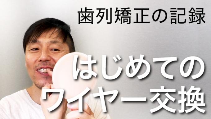 【歯列矯正】初めてのワイヤー交換【痛みや手順を動画で解説】