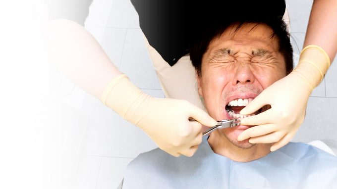 【歯列矯正のやり直し】部分矯正で失敗→ワイヤー矯正でやり直し【体験記】