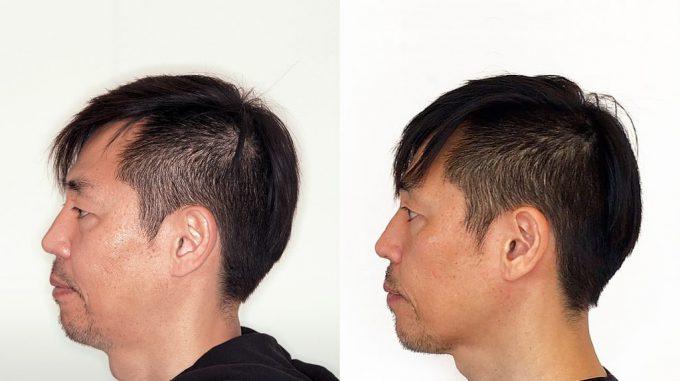 歯列矯正前と歯列矯正1年経過後の横顔の比較写真