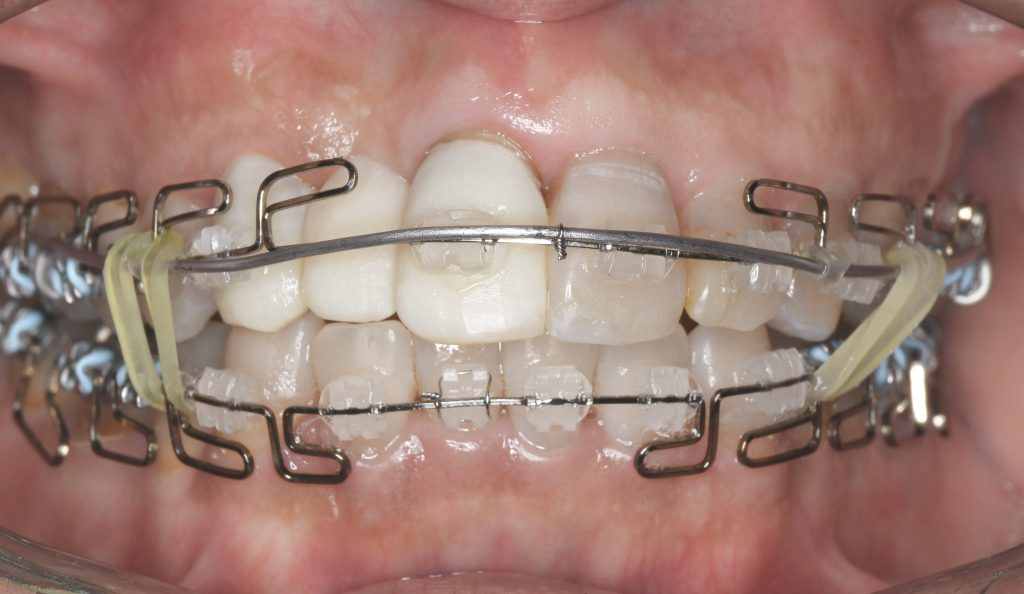 歯列矯正の痛み①|歯が引っ張られる痛み