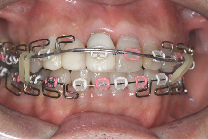 歯列矯正中にむしろ滑舌がよくなったのは、矯正装置に慣れたから