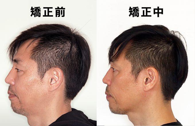 歯列矯正中に滑舌がよくなったのは下顎が本来の位置に戻ったから 矯正前と矯正中の横顔の比較
