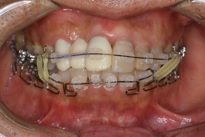 歯列矯正1ヶ月半後の顔や口の歪み|2018年5月22日
