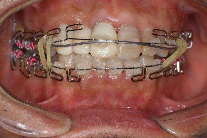歯列矯正4ヶ月後の顔や口の歪み|2018年8月28日