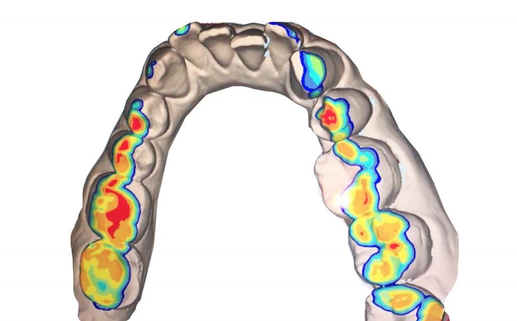 歯列矯正前の噛み合わせ|赤い部分が歯が接触している場所