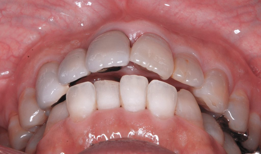 なぜ、健康な歯を差し歯にしてしまったのか?