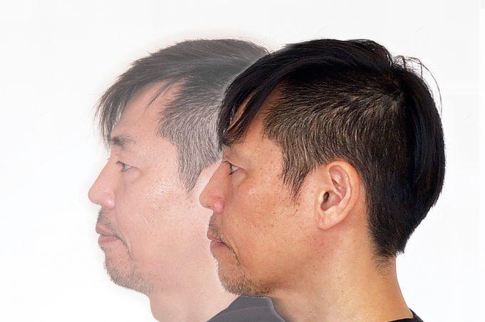 【横顔の変化】歯列矯正1年後のフェイスライン【輪郭がシャープに】