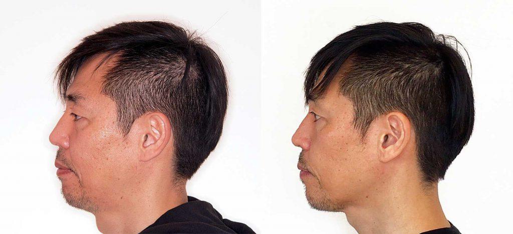 顔の輪郭がシャープに|歯列矯正1年経過