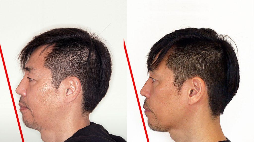 歯列矯正1年後のEラインの変化