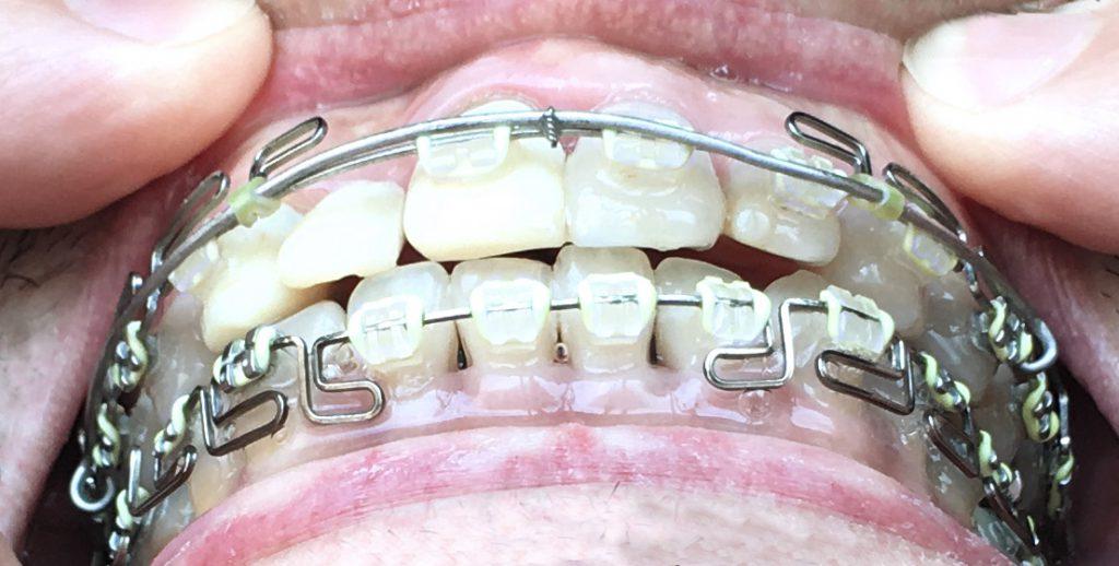 出っ歯の変化:噛み合わせ|歯列矯正1年後