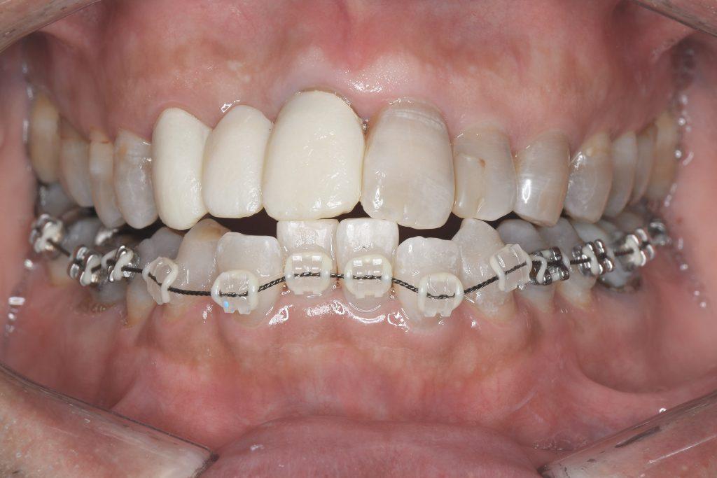 歯列矯正で起きた変化① 歯並びがキレイになった01