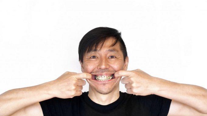 【ストレスと噛み合わせ】歯列矯正で改善した5つの不調【体験談】