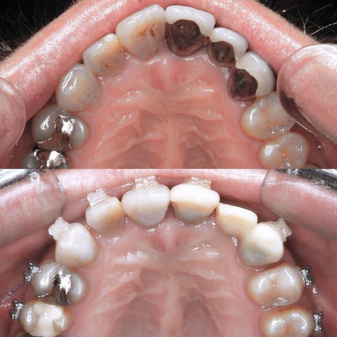 【歯列矯正】出っ歯が1年でこんなに変化しました【画像比較ブログ】