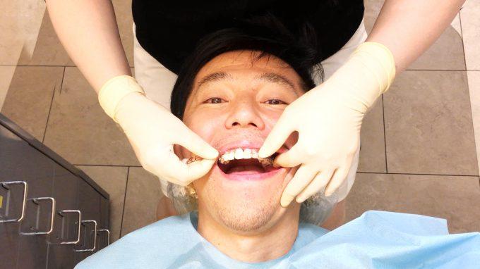 【歯列矯正1年経過】良かったこと・痛み・周りの反応【体験談】