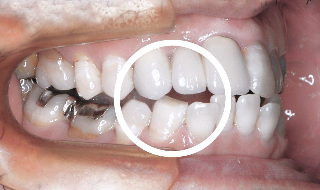 犬歯が当たるので削ったら下あごがズレてしまいました【要注意】