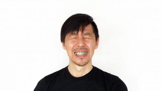 【歯列矯正中の口内炎】5つの対処&対策法|いつ治る?痛い?