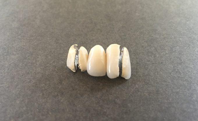 セラミック矯正をおすすめしない理由:3本つながった差し歯