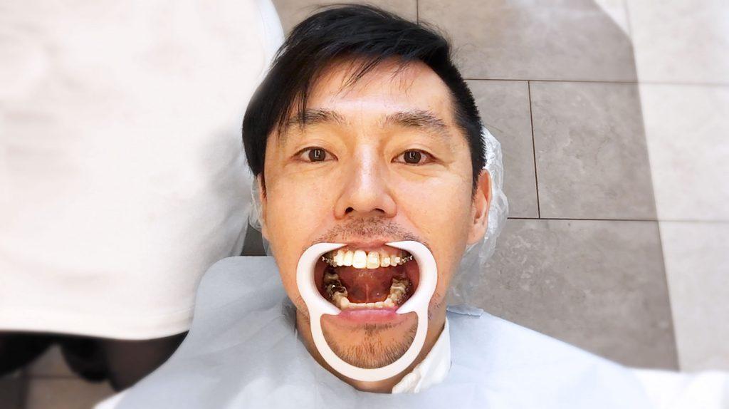 歯列矯正をすれば口の歪みの原因は治る?