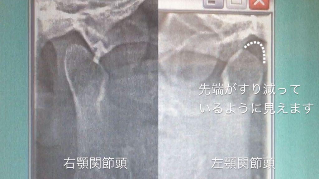 口の歪みの原因② 顎関節の先端が削れている