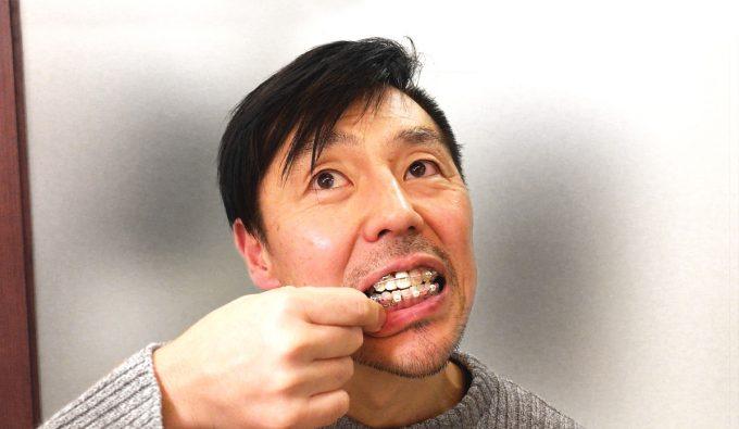 【歯列矯正】ゴムかけの期間は人それぞれ【体験談をお話しします】