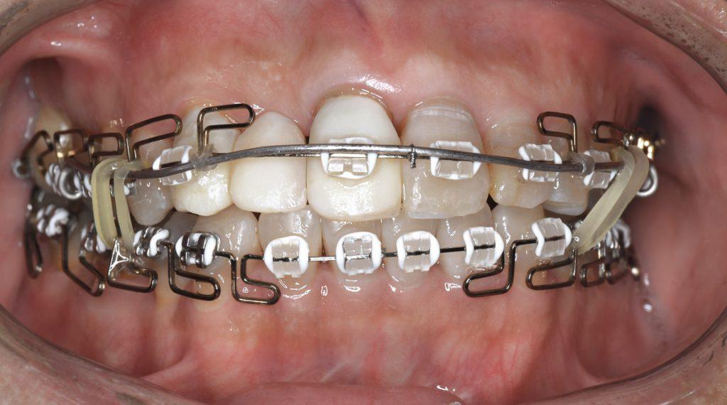 歯列矯正の見た目を目立たなくする工夫:白いカラーゴムは?