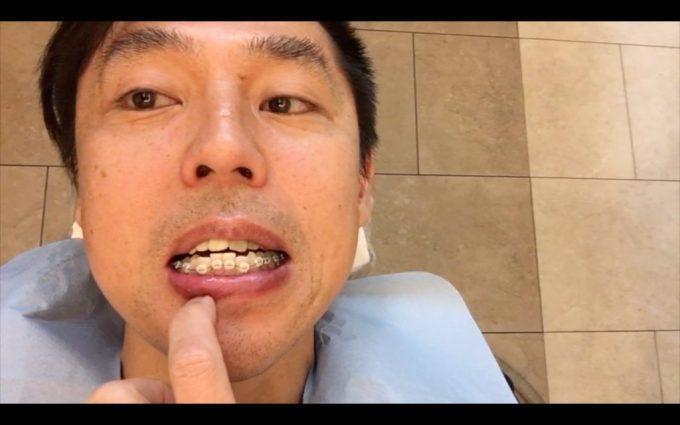 歯列矯正スタート時の顔や口の歪み|2018年4月10日